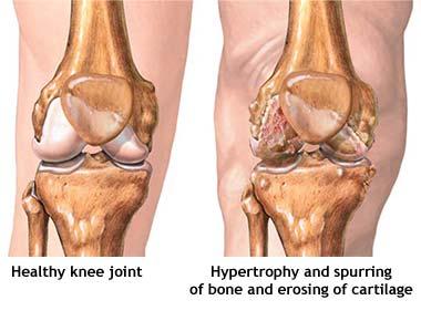 osteoarthritis-knee image